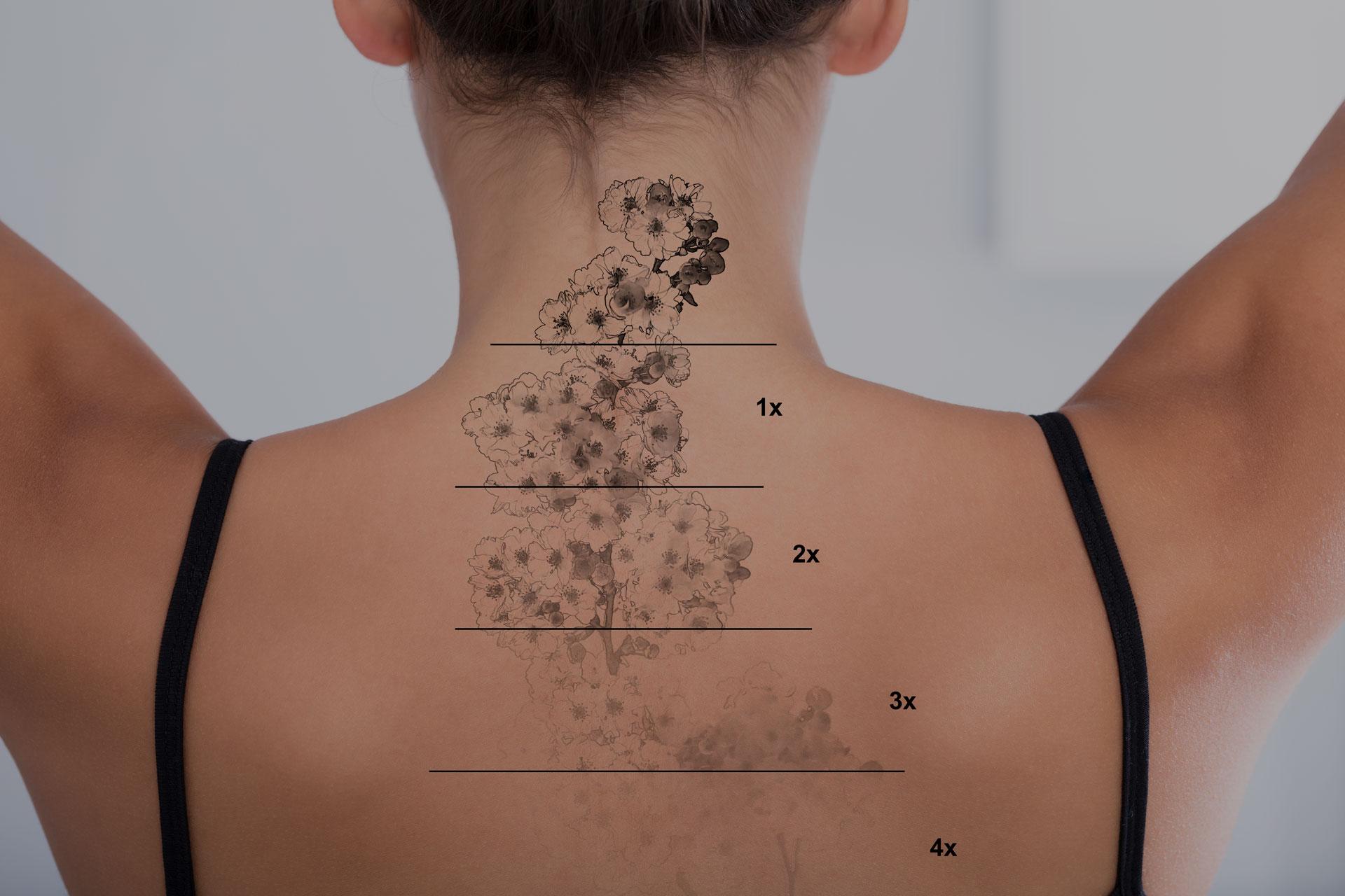 Curso Tattoo Removal Profesional NPM
